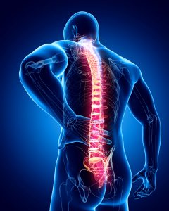 subluxation of the spine